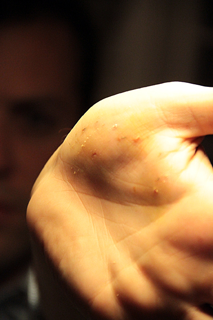 splinter hand